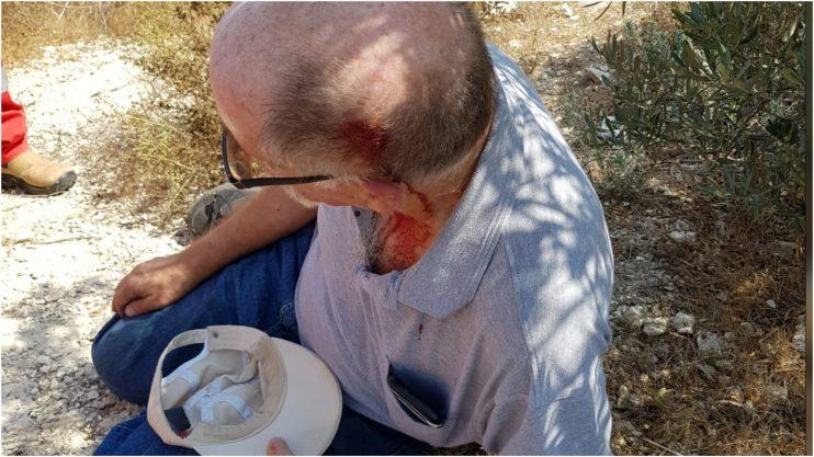 """הרב משה יהודאי לאחר תקיפתו. קרדיט: ארגון """"יש דין"""""""